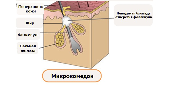 Рисунок 2. Микрокомедон.
